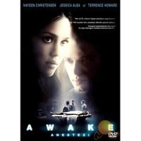 Awake (Anestezi)