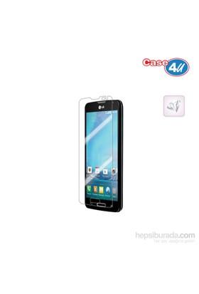 Case 4U LG L90 Ultra Şeffaf Ekran Koruyucu (Parmak izi bırakmaz)