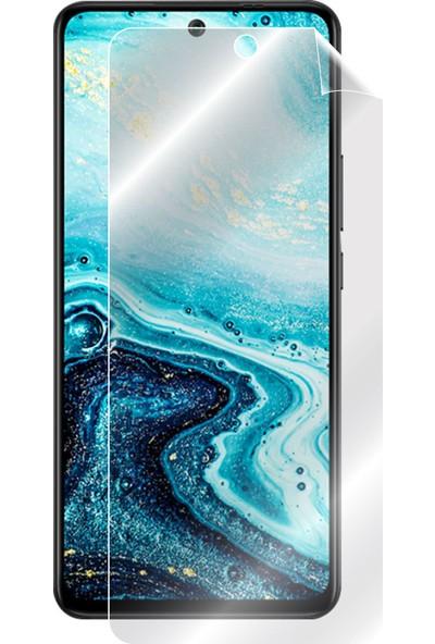 Ipg General Mobile Gm 21 Pro Görünmez Ekran Koruyucu